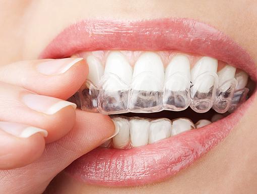 Clontarf Dental Practice - Grinding