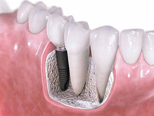 Clontarf Dental Practice - Implants