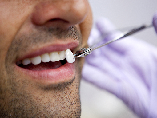 Clontarf Dental Practice - Crowns, Bridges & Veneers